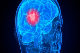 Head surgery in Nashik | Brain tumor surgery in Nashik - Dr.Sanjeev Desai