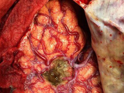Head surgery in Nashik   Brain tumor surgery in Nashik - Dr.Sanjeev Desai