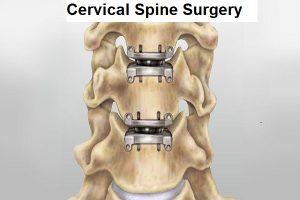 Spine Surgery in Nashik