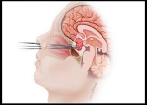 brain tumour surgery in Nashik